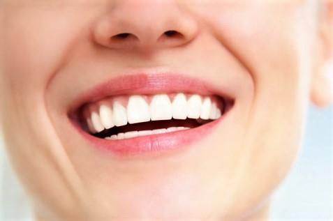 Implant dentaire devis